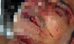 Tentativa de homicídio a pauladas em Óbidos | Portal Obidense