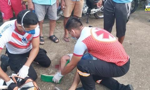 Motoqueiro sofre fratura, após se chocar com ônibus que realizava manobra em local proibido | Portal Obidense