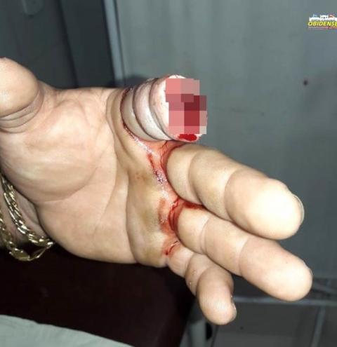 Homem arranca pedaço do dedo de seu desafeto com mordida